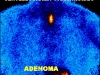 adenoma2